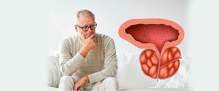 Хронический простатит и рак простаты лечение простатита простамолом уно